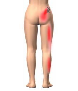 ヘルニア筋膜性疼痛