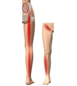 仙腸関節タイプ